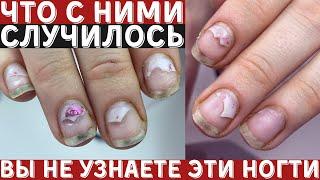 Что произошло с ногтями СЕКРЕТЫ маникюра и покрытия гель лак