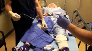 Makoplasty and ACL Reconstruction - Saphenous Nerve Block for Outpatient Knee Surgery