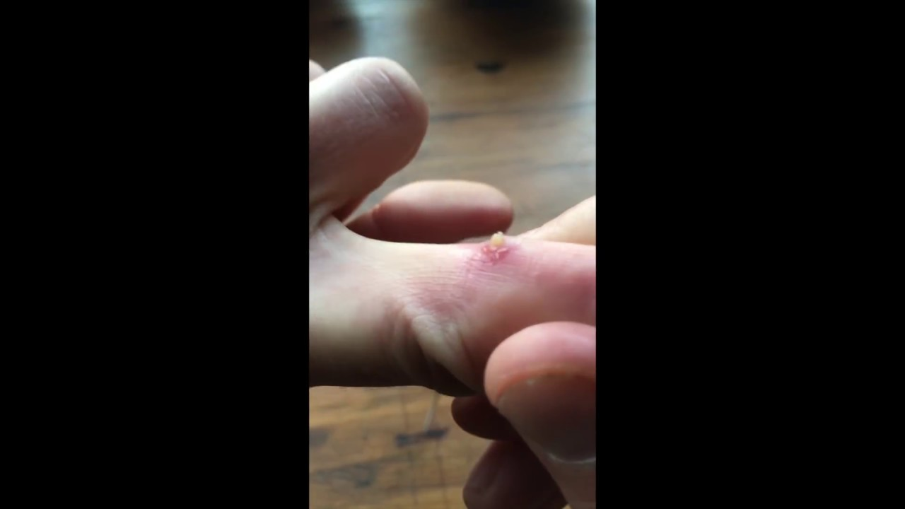 Satisfying splinter removal. (Money shot at 3:35)