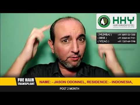 Looking For Hair Transplant In India, Must visit HHY Hair transplant clinic