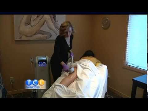 Contour Clinic - How to get the best deals on Exilis and Coolsculpting in the Twin Cities