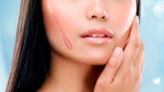 Bí quyết trị sẹo rỗ lâu năm hiệu quả nhất bạn nên biết. nhu the nao