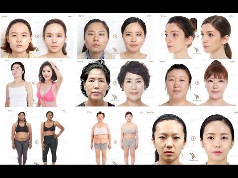 Пластическая хирургия в Южной Корее , все виды пластических операций в Корее (пластика в Корее)