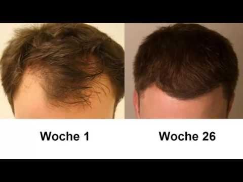 Was tun gegen Haarausfall oder Geheimratsecken? Meine Erfolgsgeschichte!