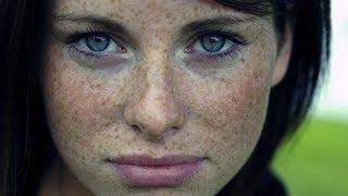 видео Народное лечение  выпадение волос у детей 002