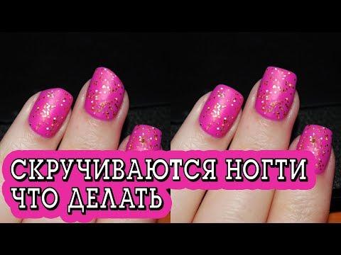 Что делать, если скручиваются ногти