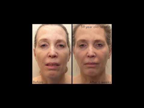 FaceTite Testimonial Part 1 - YouTube