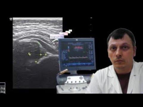 Подвывих тазобедренного сустава у грудничка