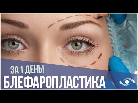 Блефаропластика век за 1 день: пластика век и кантопластика! \ Омоложение век в Новосибирске