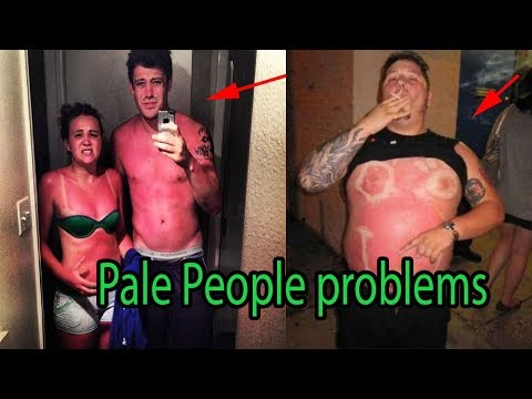 Summer Problems Only Pale People Understand