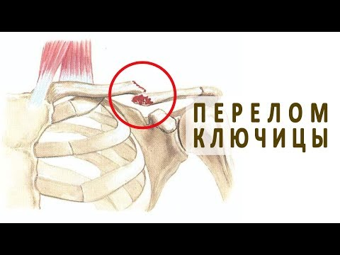 Болит ключица после операции