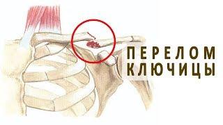 Симптомы и лечение перелома ключицы