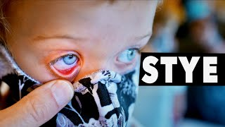 STYE IN HER EYE! (How t๐ Treat & What to Watch Out For) | Dr. Paul