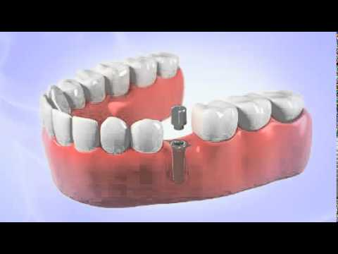 Dentist Shares a Video of Dental Implant Procedure in Jupiter, FL