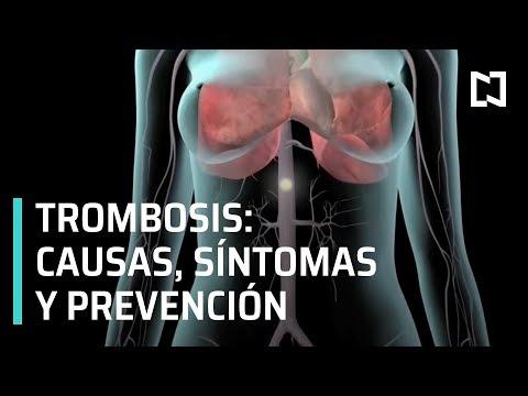 Trombosis: causas, síntomas y prevención - A Las Tres