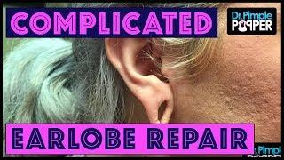 A Little More Complicated Earlobe Repair
