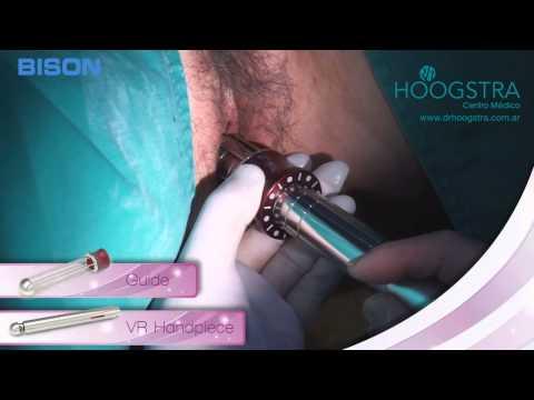Rejuvenecimiento vaginal - Procedimiento (15009)