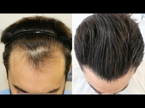 FUE Hair Transplant (1778 grafts in NW Class-ll) by Dr. Couto - FUEXPERT CLINIC