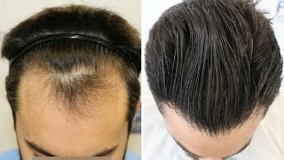 nw ll hair transplant 1778 fue grafts by dr couto fuexpert clinic