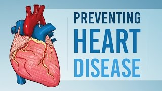 """""""heart disease may be a leading cause of death, but that doesn't mean you have to accept it as your fate. although lack the power change some risk fac..."""