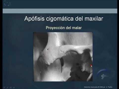 Anatomía radiográfica normal 2.Normal radiographic anatomy 2 - YouTube