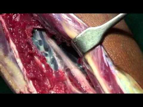Vascularized Fibula Harvesting