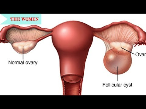 Overview of the Corpus Luteum||Common Gyn Problems