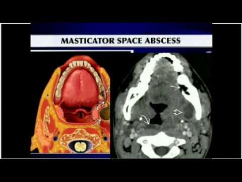 Masticator space - YouTube