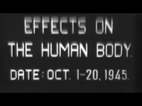 Effects On The Human Body Of Radiation From Atomic Bomb, 10/1945 GRAPHIC (full)