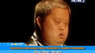 Talenta Luar Biasa Para Penderita Down Syndrome - SPOTLITE Trans 7