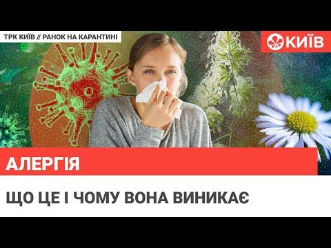 Телеканал Київ: Як протистояти сезонним літнім алергіям