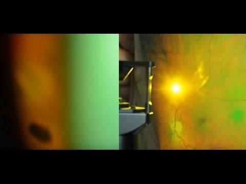 Как делают лазерную коагуляцию сетчатки глаза