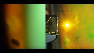 Укрепление сетчатки лазером. Лечение сетчатки глаза