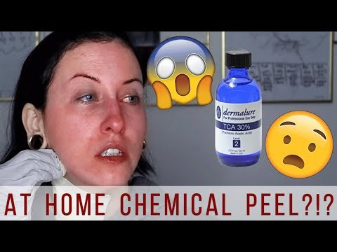 How to Do a TCA Peel at Home | TCA 30% Chemical Peel | Before & After Results