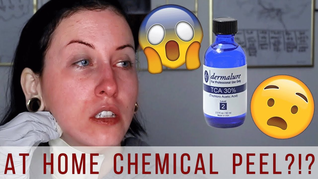 How To Do A Tca Peel At Home Tca 30 Chemical Peel Before