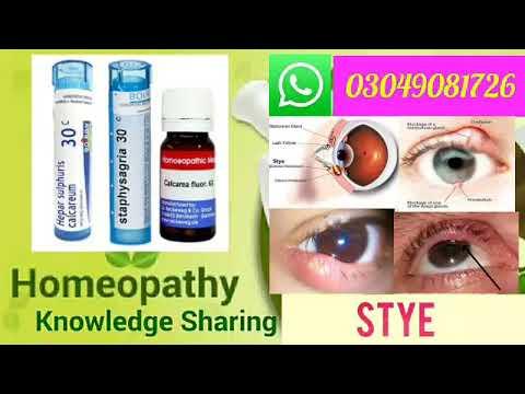 Stye | Homeopathic medicine for stye | Explain - YouTube