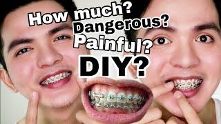 Best whitening soap jinju white soap review nicole faller diy murang braces masakit ba magkano solutioingenieria Gallery