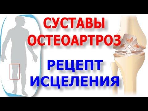 ДОА коленного сустава: причины, степени и лечение