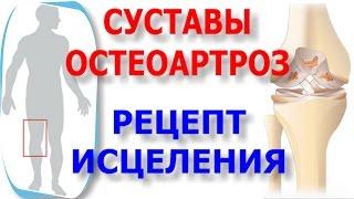 Болят суставы? Остеоартроз? Рецепт как лечить народными средствами
