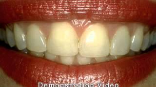Виниры(Виниры — это фарфоровые или композитные пластинки, замещающие вестибулярный (внешний) слой зубов. В видео..., 2013-10-28T12:03:13.000Z)