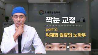 [모티브 성형외과]  짝눈 교정 part2_ 박재희 원…