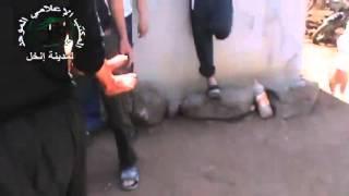 18+ 21+ Сирия: Раненные дети. Дараа, 27/07/2013