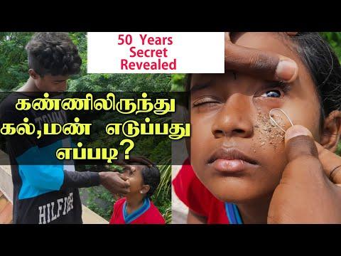 கண்ணிலிருந்து கல், மண் எடுப்பது எப்படி? || Eye cleaning in Tamil | Edison Vlogs Tamil