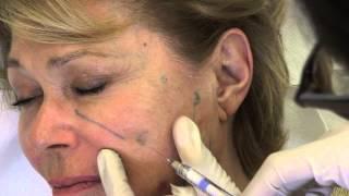 Dr Laurent Dumas - Injection ovale du visage, Radiesse et acide hyaluronique