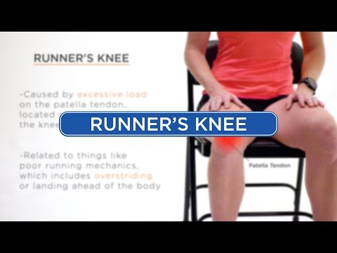 Runner's Knee Diagnosis