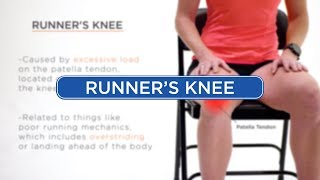 Runner's Knee - Diagnosis