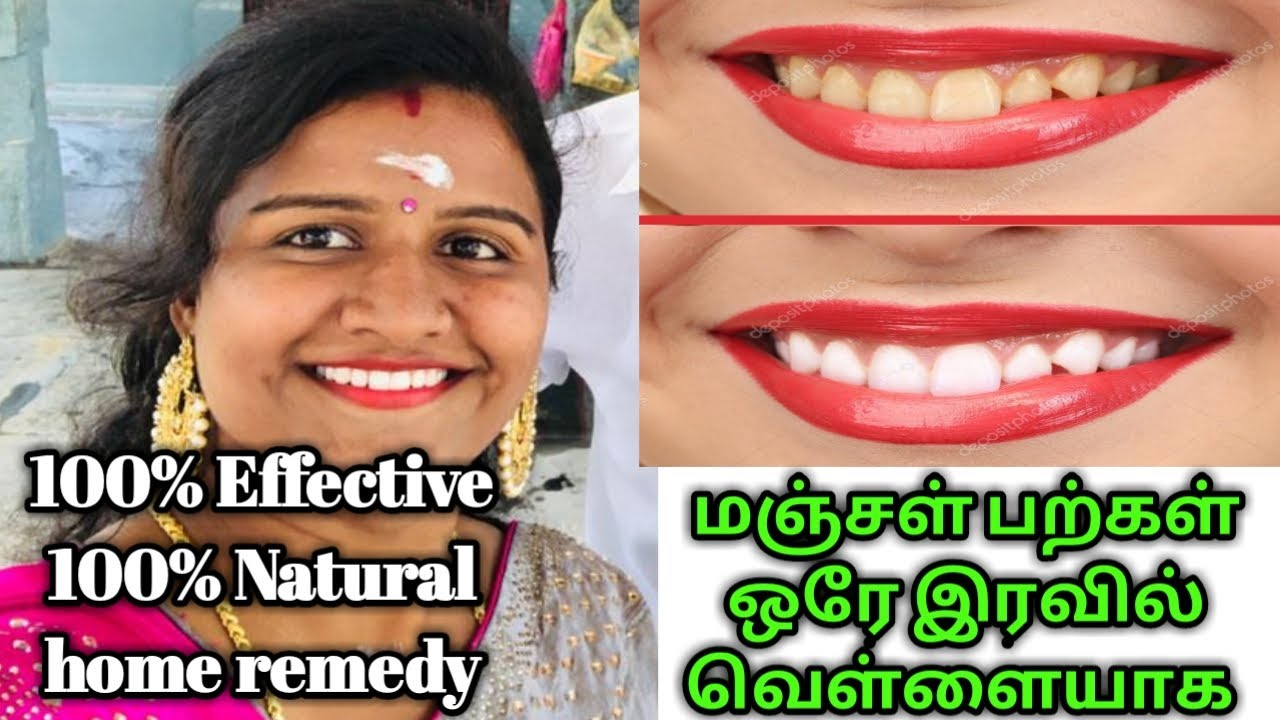 Teeth Whitening Tips In Tamil How To Remove Yellow Teeth At Home