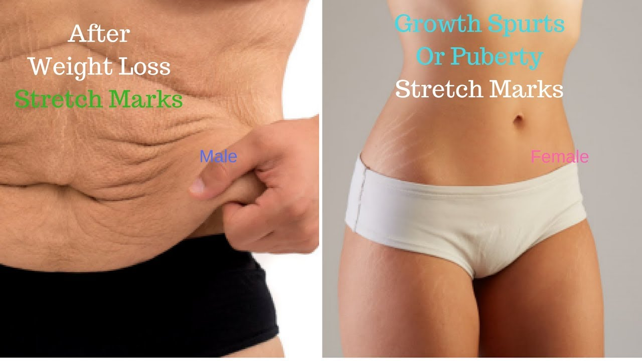 Reasons Why Some Get Stretch Marks And Others Don T Fast Stretch