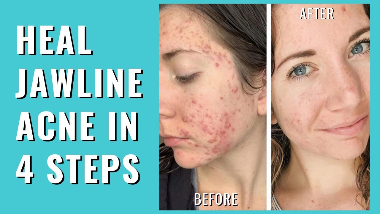 Jawline Acne Clear Cystic Acne On Jawline Fast Youtube
