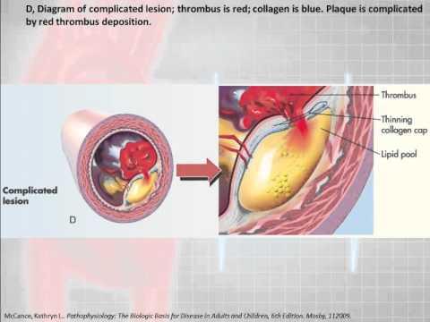 12 Lead Interpretation Part 6-1: Pathophysiolgoy of Myocardial Infarctions